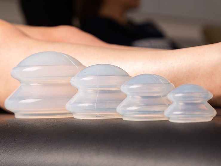 Silicone Cupping Set of 4 Cups