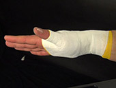 Post Injury Taping: Thumb  Video