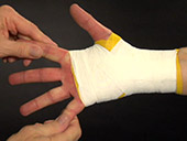 Post Injury Taping: Wrist Video