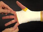 Post Injury Taping: Wrist Video